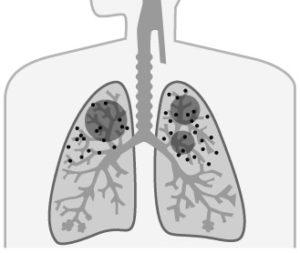 じん肺とは